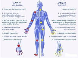 Resultado de imagen de fotos de artrosis