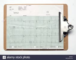 Patient Chart Clipboard Chart On Clipboard Clip Board Elevated View Stock Photo