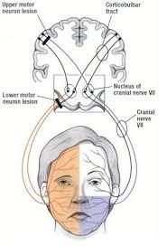 upper motor neuron lesion