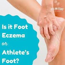 Is it Foot Eczema or Athlete's Foot? - It's an Itchy Little World