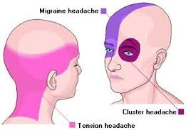 Cluster Headache Location Chart Causes Severe Headaches Types Of Headaches Types Of