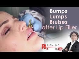 bruising after lip fillers dr rajani