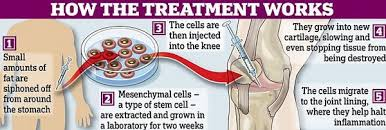 stem cell research for arthritis