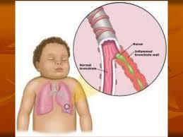 Kết quả hình ảnh cho atlat bẹnh nhân phù phổi cấp