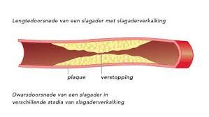 bloedvaten vernauwen