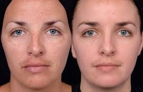 Quanto custa um tratamento de peeling para acne