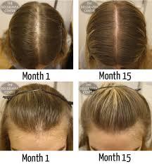 Female Pattern Baldness In 20s