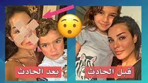 نادين نجيم ، قبل وبعد عملية تجميل الوجه بسبب الحادث ، هل تغيرت ؟ - YouTube