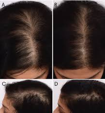 Treating Hair Loss With Platelet-Rich Plasma | The Dermatologist