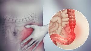 صدى البلد: القولون العصبي .. 5 أسباب و7 أعراض والعلاج السريع بهذه الطريقة