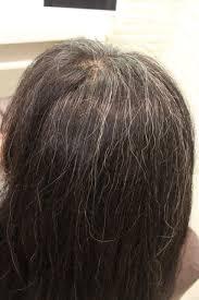 施術例before After 白髪ってなんでクセが強いのかを検証する