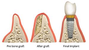 Image result for bone grafting images
