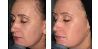 Clear lift laser facial