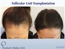 hair transplant how it works what getting a hair transplant entails from cost to risks how