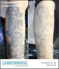 лазерное удаление татуировок в красноярске удаление татуажа Midgard