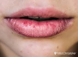 why are my lips always chapped walk