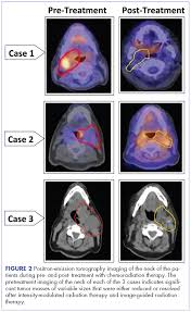 Tonsil Size Chart Management Of Tonsillar Carcinoma With Advanced Radiation