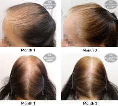 Hairstyles Female Hair Loss Ideas About Female Pattern Baldness Hairstyles Hairstyles For Men