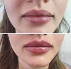 Lip Filler Chart Lip Fillers Guide Type Of Lip Injections Costs And Side