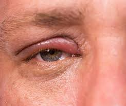 there are three types of ps you may notice in or around the eye stye