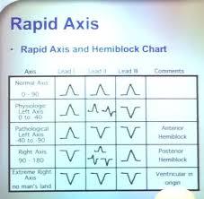 Mystlukes Chart