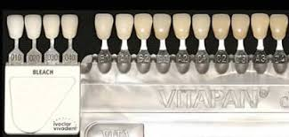 Choosing A Shade For Your Porcelain Veneers David Eshom