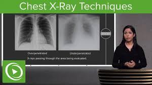 Pediatric Chest X Ray Technique Chart Chest X Ray Techniques Inspiration Penetration Rotation Radiology Lecturio