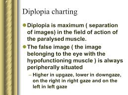 Approach To A Patient With Diplopia Ppt Video Online Download