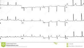 Ekg Graph Printout Stock Image Image Of Electrocardiogram