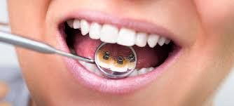 「lingual orthodontics」の画像検索結果