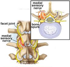 Whats A Facet Facet Joint Syndrome Facet Arthropathy Mayfield Brain Spine