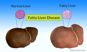 Image result for fatty liver