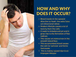 Varicocele Natural Treatment How To Cure Varicocele Naturally