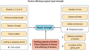 Flexor Tendon An Overview Sciencedirect Topics