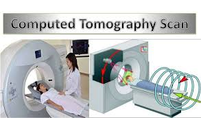 CT Scan (Computed Tomography) – What All Should You Know? - Omega PDS