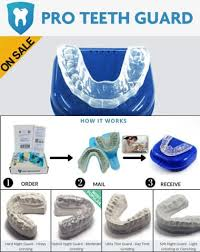 mouth guards for grinding teeth
