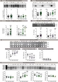 Co Occurrence Of Mixed Proteinopathies In Late Stage Huntingtons
