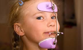 نتيجة بحث الصور عن face mask ortho