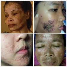 Image result for Cream Pemutih Wajah Yang Berbahaya