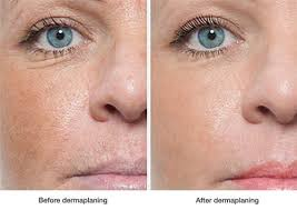 Image result for dermaplaning before and after pictures clinics