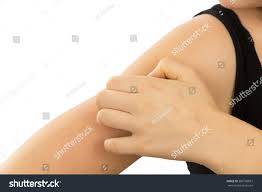 Young Woman Scratching Her Itchy Arm Stock Photo (Edit Now ...