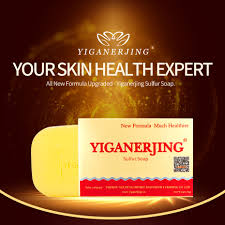 5 pcs/lot Skin Allergy Treatment Relieve Itching yiganerjing Soap-in ...