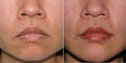lip lift the pre operative aspect left and the post operative aspect of the lifte corners of the mouth