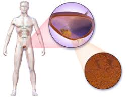 Bladder cancer may not cause any signs or symptoms in its early stages. Bladder Cancer Wikipedia