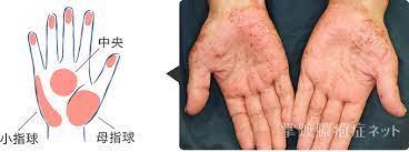 掌 蹠 膿疱 症