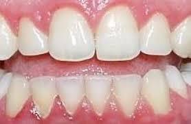 Imagini pentru gingivita