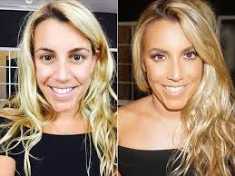 before after photos brittany talarico hrush achemyan