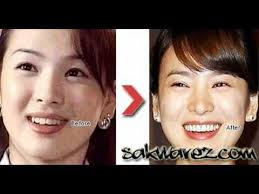 korean stars plastic surgery before and after
