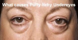 causes for puffy itchy under eyes