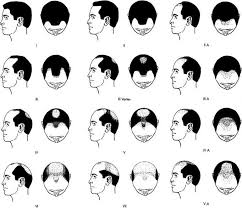 How Bald Are You Based On The Norwood Scale